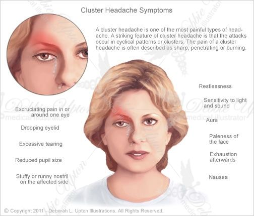Sudden Intense Headache Cluster Headaches