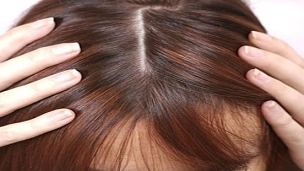 Itchy Scalp Thinning Hair