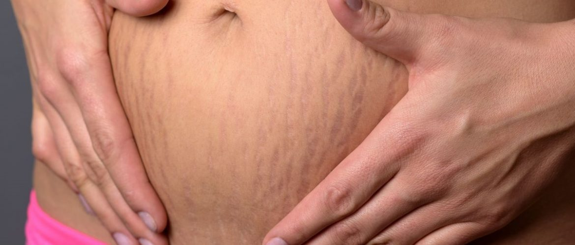 How to remove the Stretch Marks?