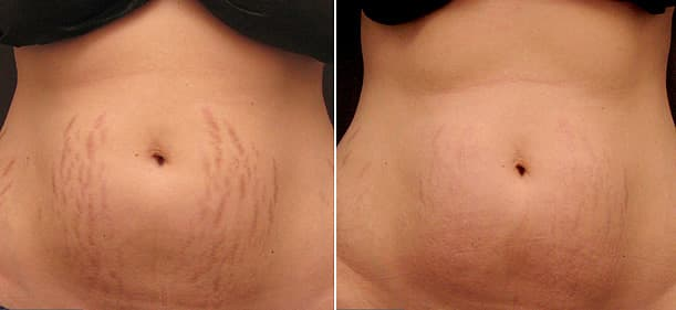 stretch mark removal on belly